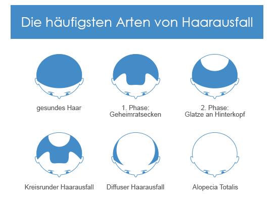 Die Formen des Haarausfalls