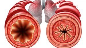 Asthma bronchiale – Anzeichen und Behandlung